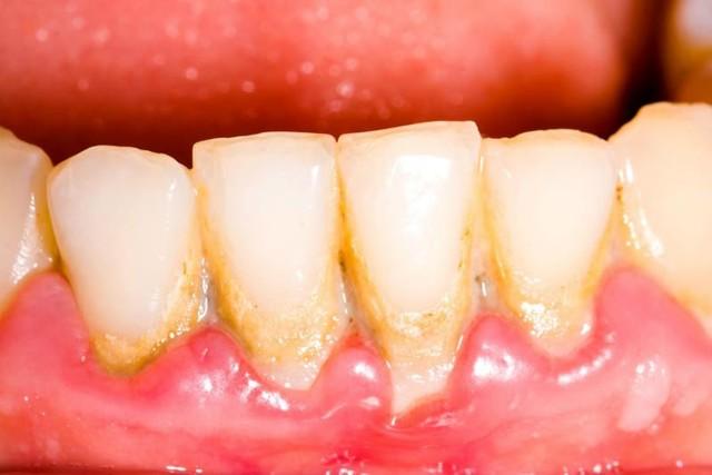 Зубной налет: образование, развитие, последствия и способы профилактики